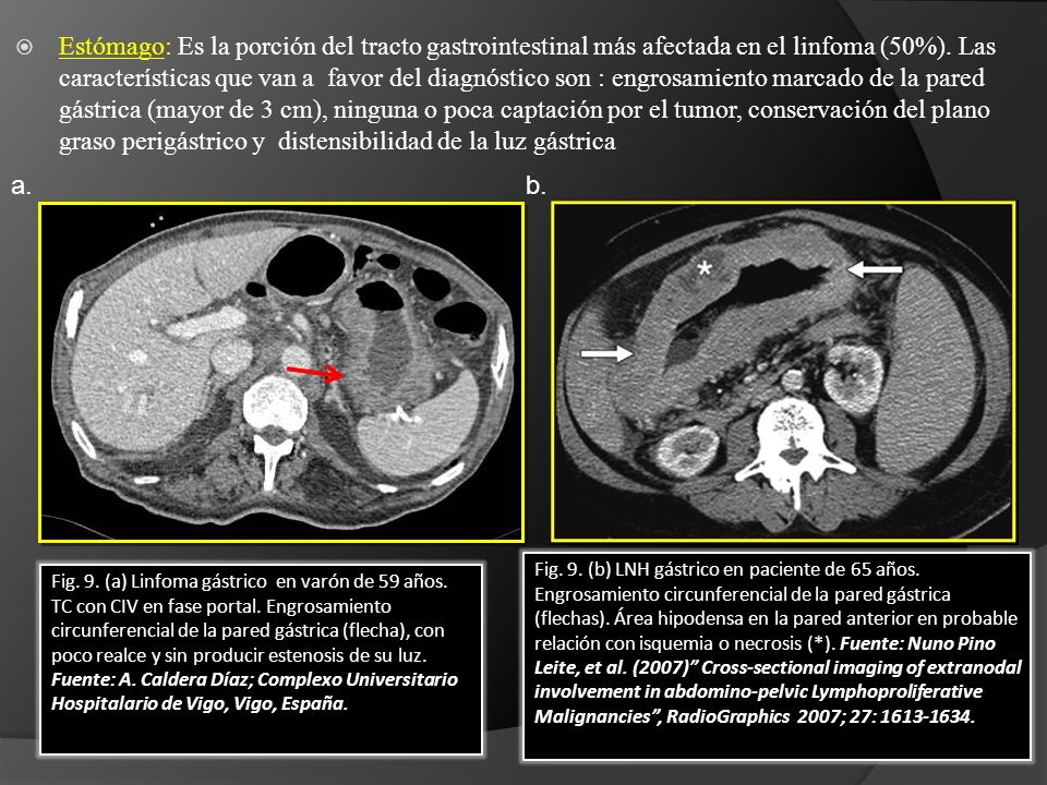 Fig. 9. (b) LNH gástrico en paciente de 65 años. Engrosamiento circunferencial de la pared gástrica (flechas). Área hipodensa en la pared anterior en