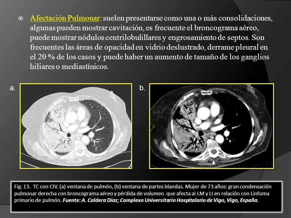 Afectación Pulmonar: suelen presentarse como una o más consolidaciones, algunas pueden mostrar cavitación, es frecuente el broncograma aéreo, puede mostrar nódulos centrilobulillares y engrosamiento de septos.