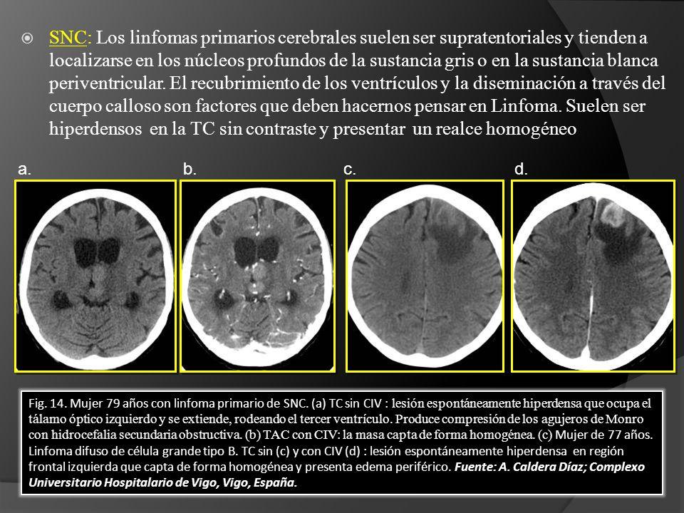 SNC: Los linfomas primarios cerebrales suelen ser supratentoriales y tienden a localizarse en los núcleos profundos de la sustancia gris o en la sustancia blanca periventricular.