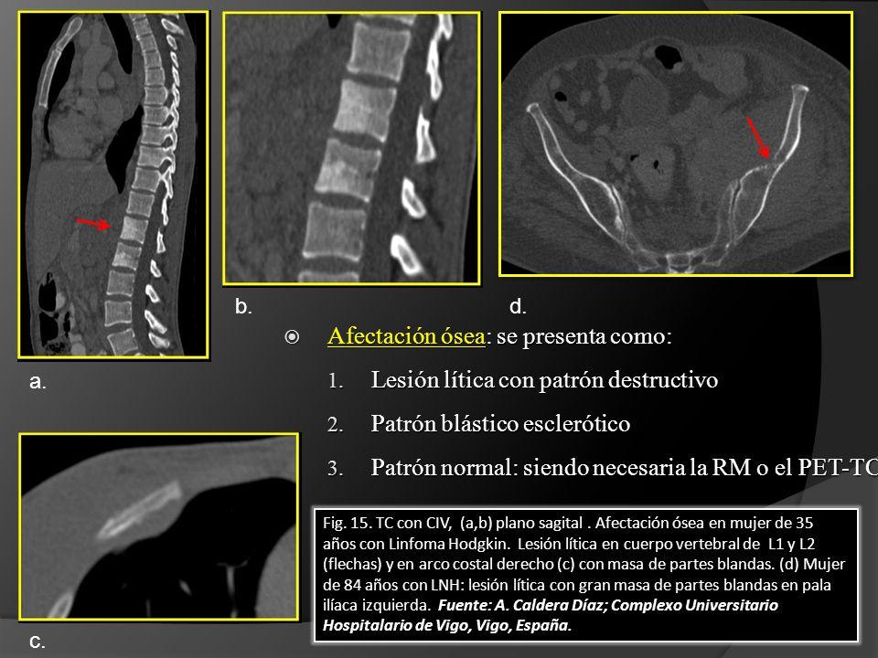 Fig. 15. TC con CIV, (a,b) plano sagital. Afectación ósea en mujer de 35 años con Linfoma Hodgkin. Lesión lítica en cuerpo vertebral de L1 y L2 (flech