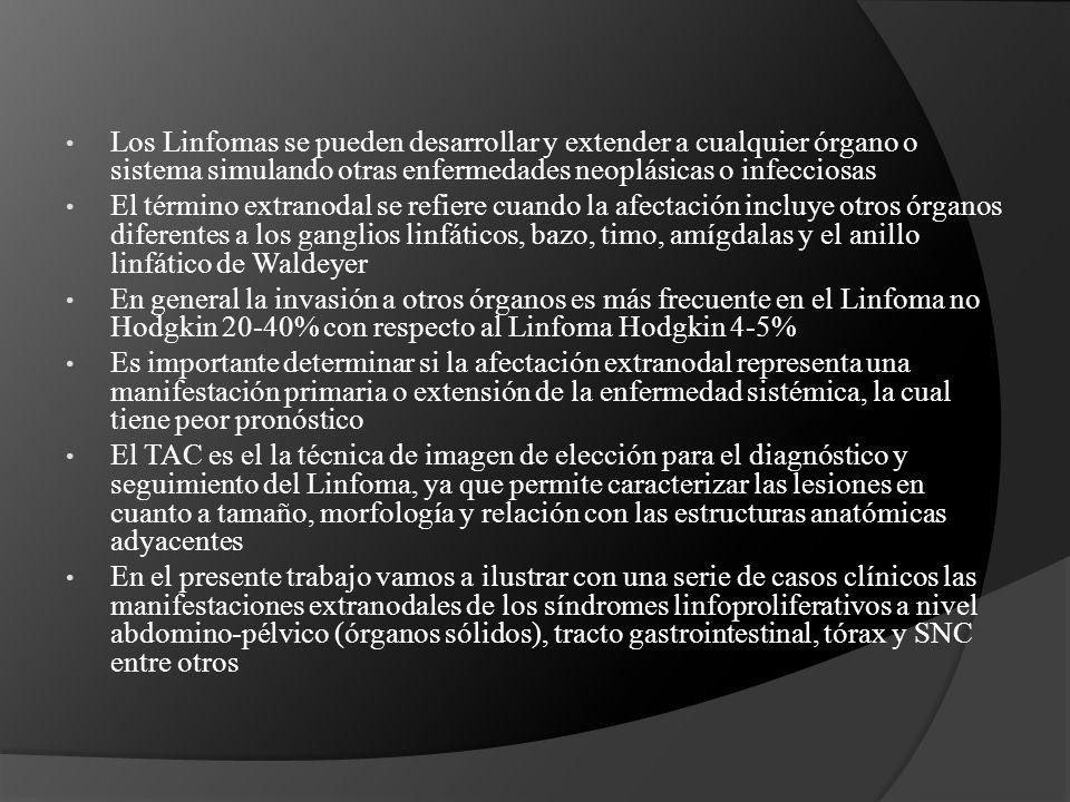 Los Linfomas se pueden desarrollar y extender a cualquier órgano o sistema simulando otras enfermedades neoplásicas o infecciosas El término extranodal se refiere cuando la afectación incluye otros órganos diferentes a los ganglios linfáticos, bazo, timo, amígdalas y el anillo linfático de Waldeyer En general la invasión a otros órganos es más frecuente en el Linfoma no Hodgkin 20-40% con respecto al Linfoma Hodgkin 4-5% Es importante determinar si la afectación extranodal representa una manifestación primaria o extensión de la enfermedad sistémica, la cual tiene peor pronóstico El TAC es el la técnica de imagen de elección para el diagnóstico y seguimiento del Linfoma, ya que permite caracterizar las lesiones en cuanto a tamaño, morfología y relación con las estructuras anatómicas adyacentes En el presente trabajo vamos a ilustrar con una serie de casos clínicos las manifestaciones extranodales de los síndromes linfoproliferativos a nivel abdomino-pélvico (órganos sólidos), tracto gastrointestinal, tórax y SNC entre otros