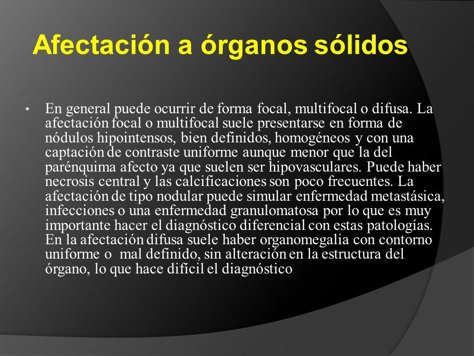 Afectación a órganos sólidos En general puede ocurrir de forma focal, multifocal o difusa. La afectación focal o multifocal suele presentarse en forma