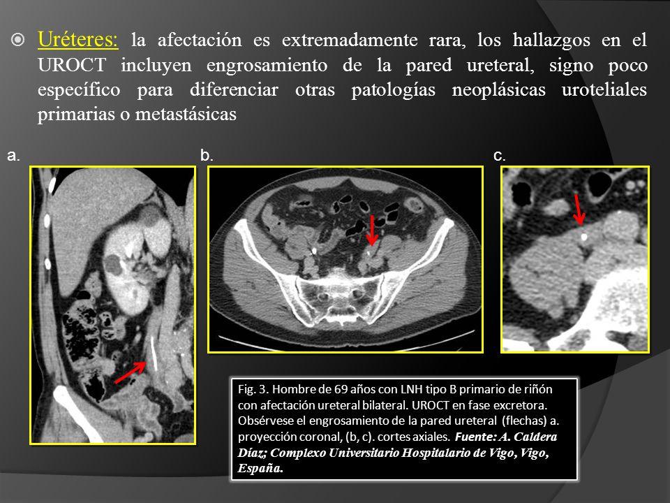 Uréteres: la afectación es extremadamente rara, los hallazgos en el UROCT incluyen engrosamiento de la pared ureteral, signo poco específico para diferenciar otras patologías neoplásicas uroteliales primarias o metastásicas Fig.