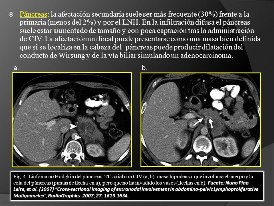 Páncreas: la afectación secundaria suele ser más frecuente (30%) frente a la primaria (menos del 2%) y por el LNH.