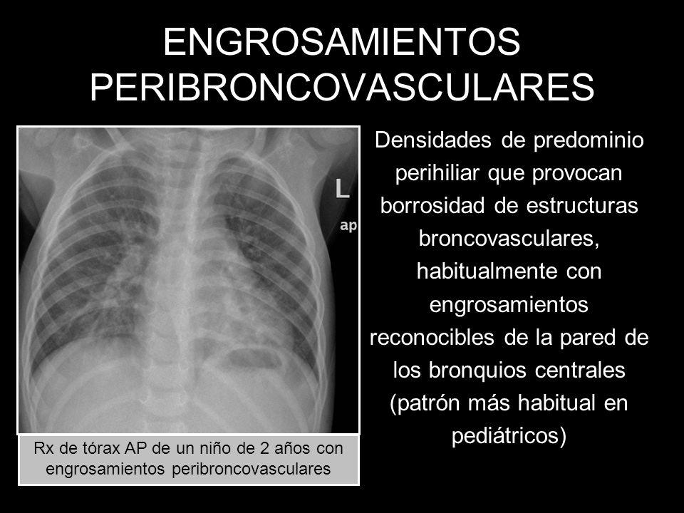 ENGROSAMIENTOS PERIBRONCOVASCULARES Densidades de predominio perihiliar que provocan borrosidad de estructuras broncovasculares, habitualmente con eng