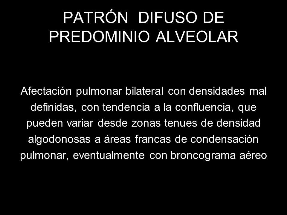 PATRÓN DIFUSO DE PREDOMINIO ALVEOLAR Afectación pulmonar bilateral con densidades mal definidas, con tendencia a la confluencia, que pueden variar des