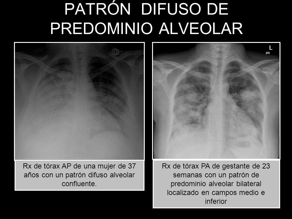 PATRÓN DIFUSO DE PREDOMINIO ALVEOLAR Rx de tórax PA de gestante de 23 semanas con un patrón de predominio alveolar bilateral localizado en campos medi