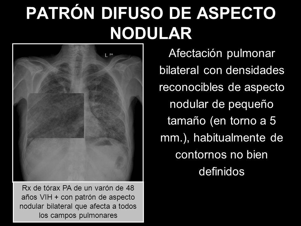 PATRÓN DIFUSO DE ASPECTO NODULAR Afectación pulmonar bilateral con densidades reconocibles de aspecto nodular de pequeño tamaño (en torno a 5 mm.), ha