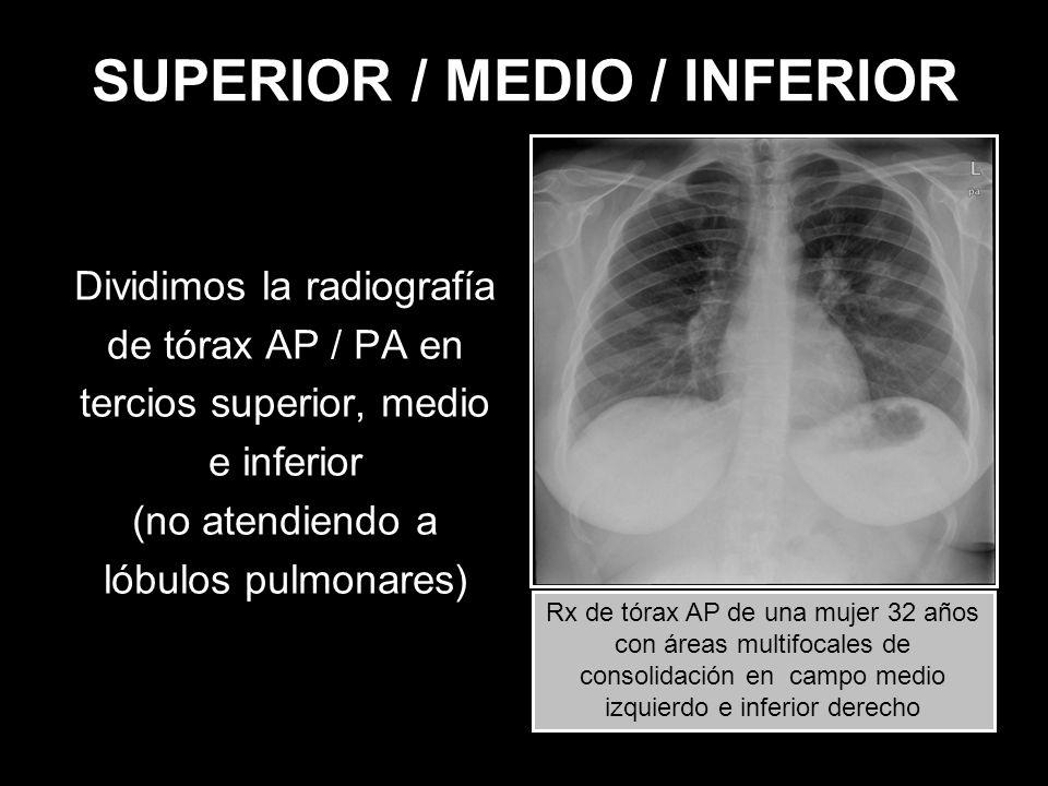 SUPERIOR / MEDIO / INFERIOR Dividimos la radiografía de tórax AP / PA en tercios superior, medio e inferior (no atendiendo a lóbulos pulmonares) Rx de