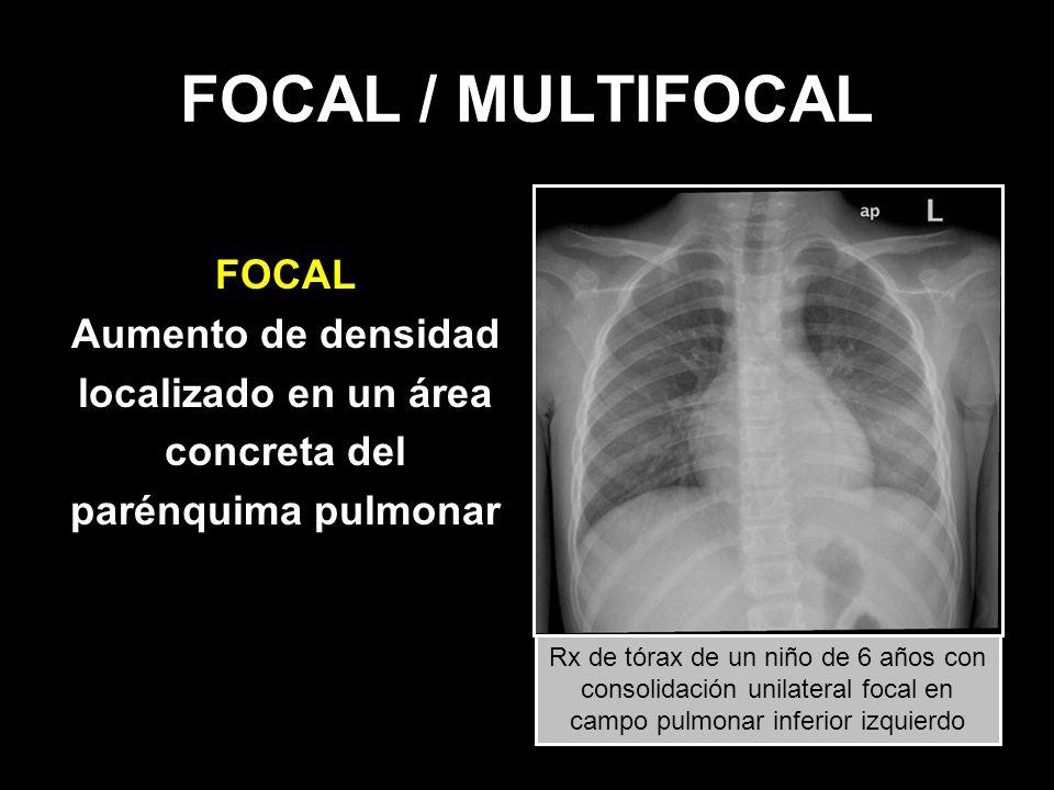 FOCAL / MULTIFOCAL FOCAL Aumento de densidad localizado en un área concreta del parénquima pulmonar Rx de tórax de un niño de 6 años con consolidación
