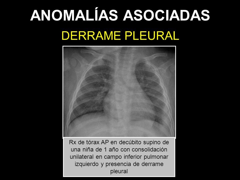ANOMALÍAS ASOCIADAS DERRAME PLEURAL Rx de tórax AP en decúbito supino de una niña de 1 año con consolidación unilateral en campo inferior pulmonar izq