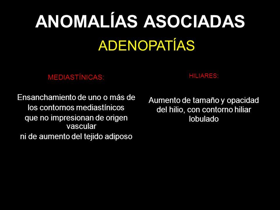 ANOMALÍAS ASOCIADAS MEDIASTÍNICAS: Ensanchamiento de uno o más de los contornos mediastínicos que no impresionan de origen vascular ni de aumento del
