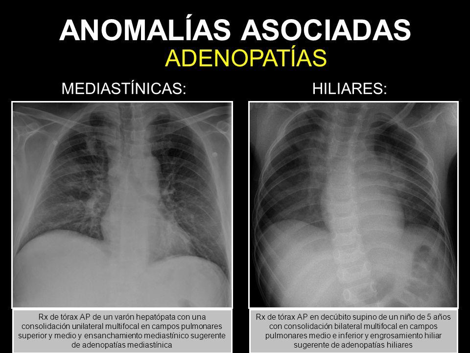 ANOMALÍAS ASOCIADAS MEDIASTÍNICAS: HILIARES: ADENOPATÍAS Rx de tórax AP de un varón hepatópata con una consolidación unilateral multifocal en campos p