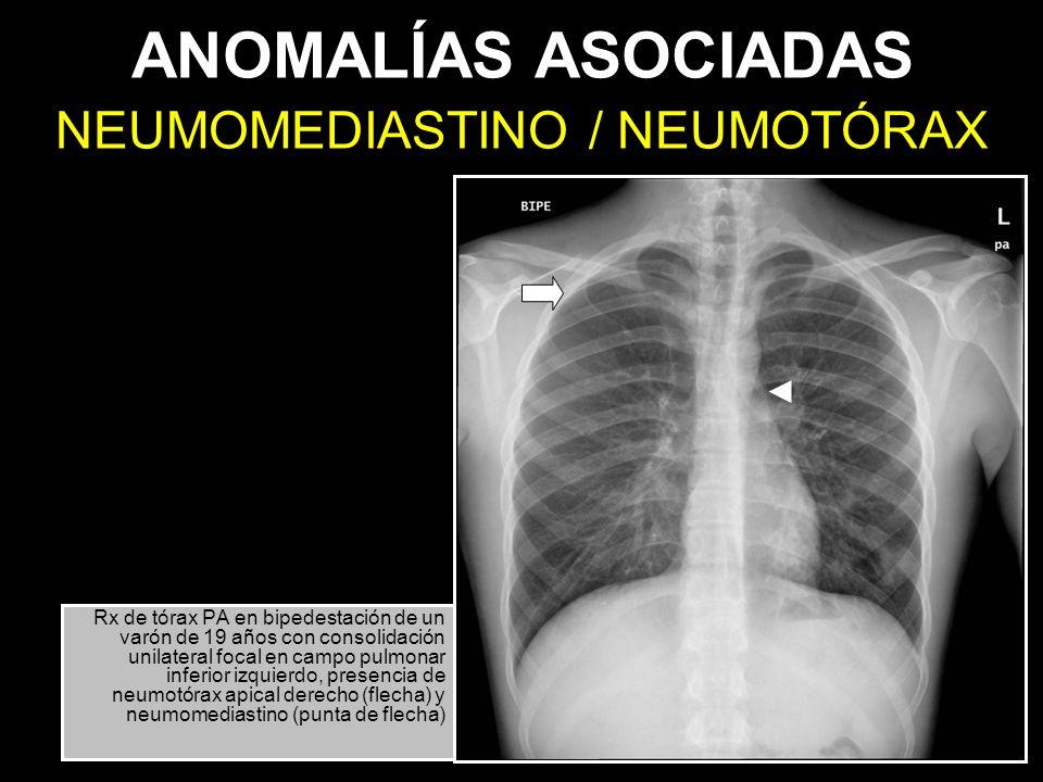 ANOMALÍAS ASOCIADAS Rx de tórax PA en bipedestación de un varón de 19 años con consolidación unilateral focal en campo pulmonar inferior izquierdo, pr