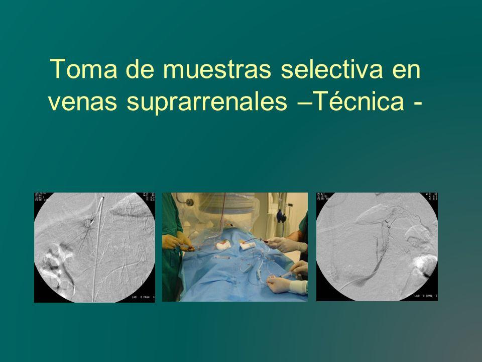 Toma de muestras selectiva en venas suprarrenales –Técnica -