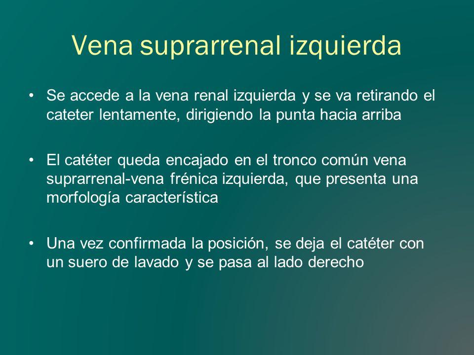 Vena suprarrenal izquierda Se accede a la vena renal izquierda y se va retirando el cateter lentamente, dirigiendo la punta hacia arriba El catéter qu
