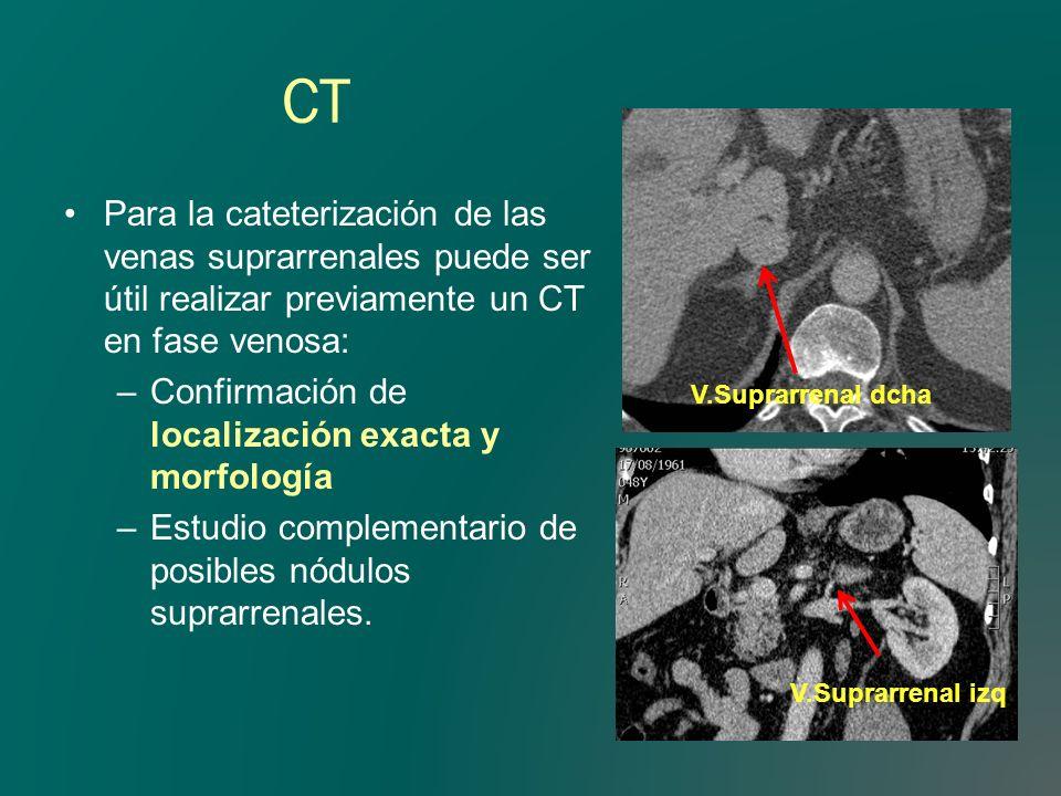 CT Para la cateterización de las venas suprarrenales puede ser útil realizar previamente un CT en fase venosa: –Confirmación de localización exacta y