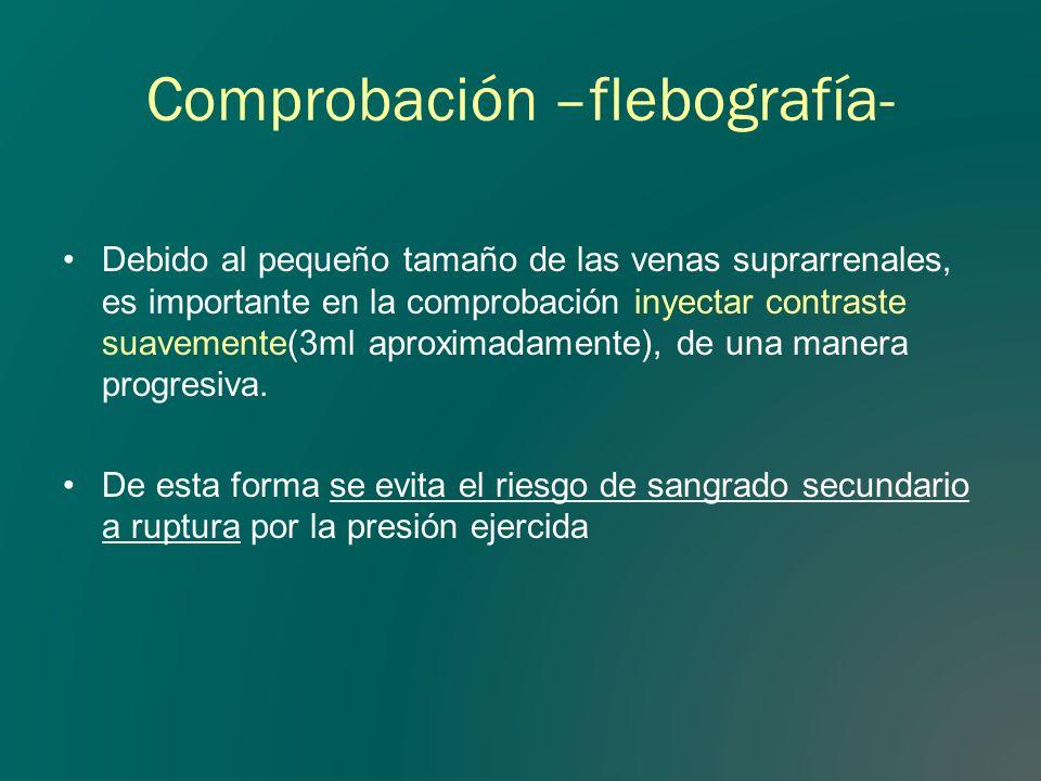 Comprobación –flebografía- Debido al pequeño tamaño de las venas suprarrenales, es importante en la comprobación inyectar contraste suavemente(3ml apr