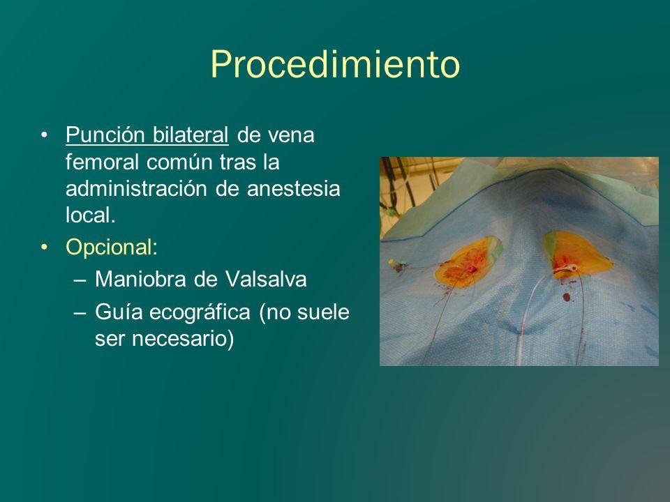 Procedimiento Punción bilateral de vena femoral común tras la administración de anestesia local. Opcional: –Maniobra de Valsalva –Guía ecográfica (no