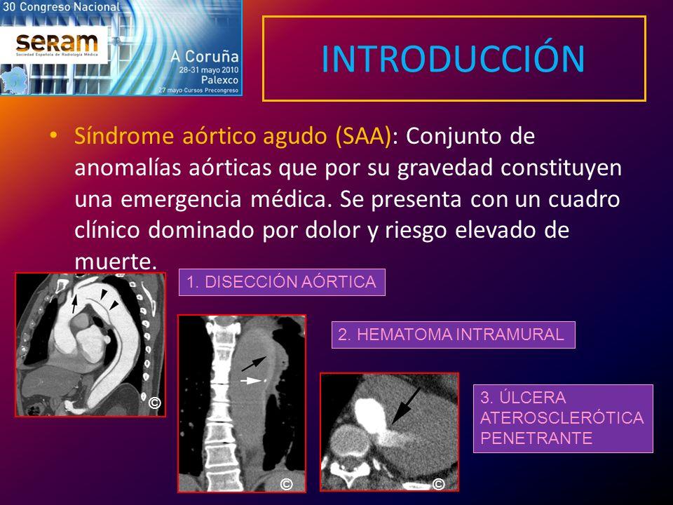 INTRODUCCIÓN Síndrome aórtico agudo (SAA): Conjunto de anomalías aórticas que por su gravedad constituyen una emergencia médica. Se presenta con un cu