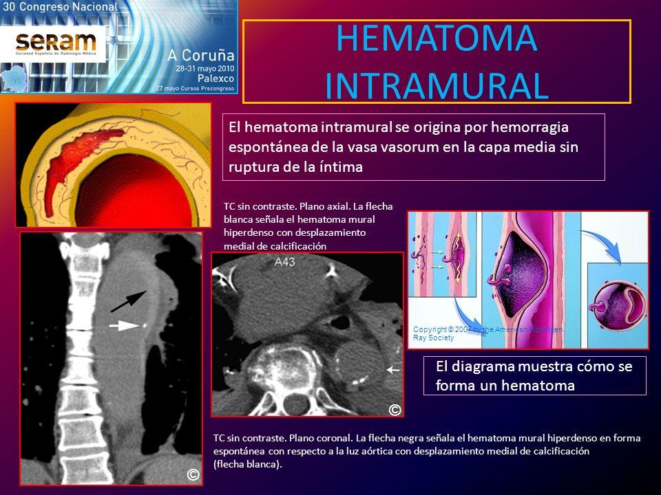 HEMATOMA INTRAMURAL El diagrama muestra cómo se forma un hematoma Copyright © 2007 by the American Roentgen Ray Society El hematoma intramural se orig