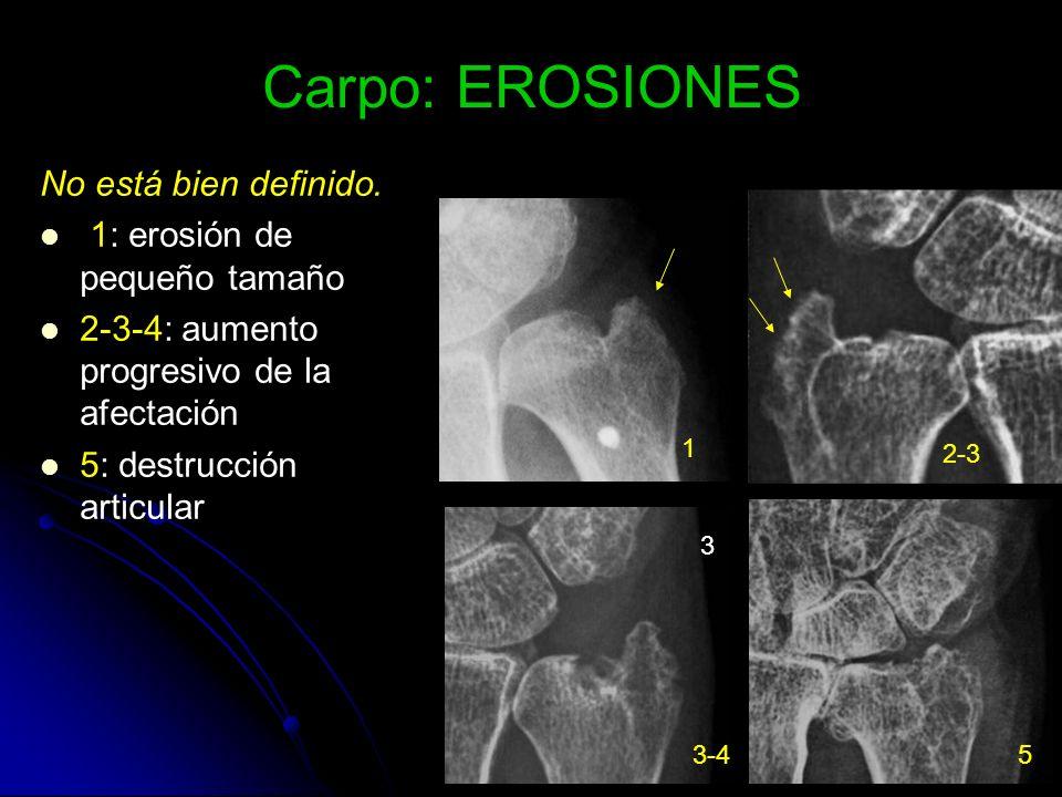 Carpo: EROSIONES No está bien definido. 1: erosión de pequeño tamaño 2-3-4: aumento progresivo de la afectación 5: destrucción articular 1 2-3 3 3-45