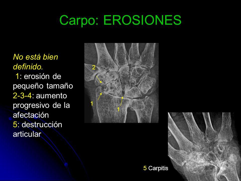 Carpo: EROSIONES No está bien definido. 1: erosión de pequeño tamaño 2-3-4: aumento progresivo de la afectación 5: destrucción articular 5 Carpitis 1