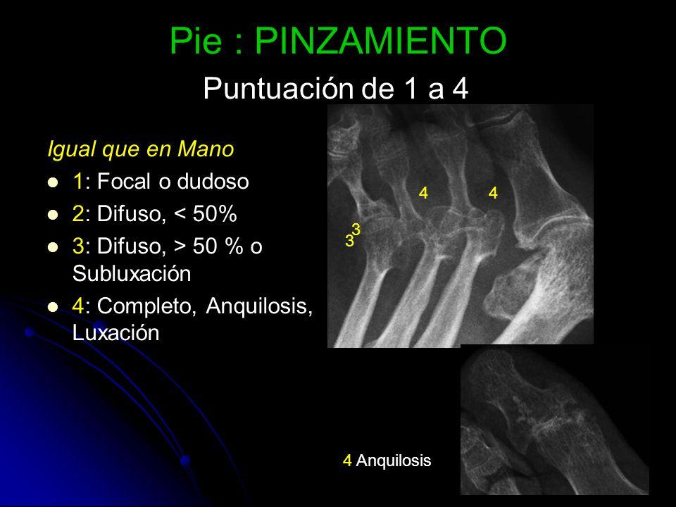 Pie : PINZAMIENTO Puntuación de 1 a 4 Igual que en Mano 1: Focal o dudoso 2: Difuso, < 50% 3: Difuso, > 50 % o Subluxación 4: Completo, Anquilosis, Lu