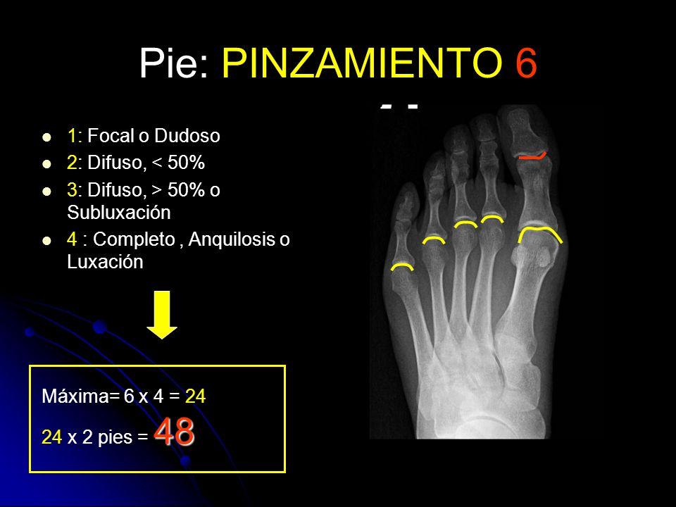 Pie: PINZAMIENTO 6 1: Focal o Dudoso 2: Difuso, < 50% 3: Difuso, > 50% o Subluxación 4 : Completo, Anquilosis o Luxación Máxima= 6 x 4 = 24 48 24 x 2