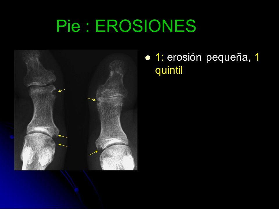 Pie : EROSIONES 1: erosión pequeña, 1 quintil