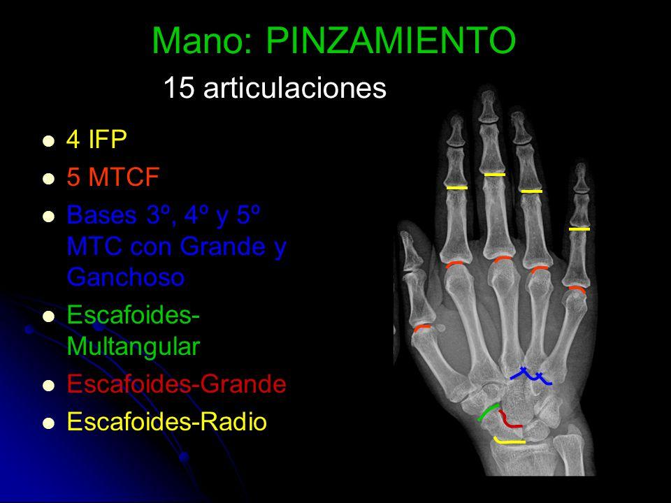 Mano: PINZAMIENTO 15 articulaciones 4 IFP 5 MTCF Bases 3º, 4º y 5º MTC con Grande y Ganchoso Escafoides- Multangular Escafoides-Grande Escafoides-Radi