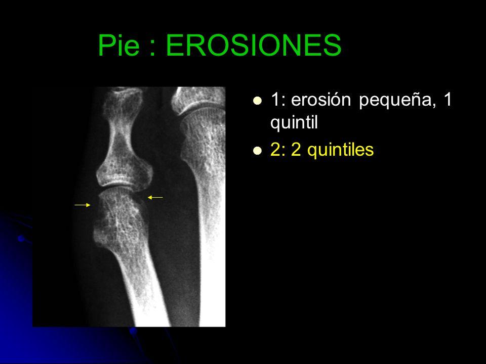 Pie : EROSIONES 1: erosión pequeña, 1 quintil 2: 2 quintiles