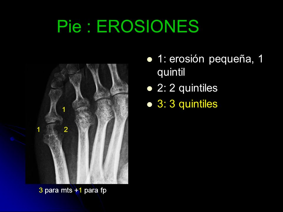Pie : EROSIONES 1: erosión pequeña, 1 quintil 2: 2 quintiles 3: 3 quintiles 1 1 2 3 para mts +1 para fp