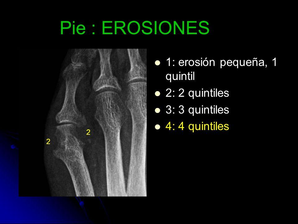 Pie : EROSIONES 1: erosión pequeña, 1 quintil 2: 2 quintiles 3: 3 quintiles 4: 4 quintiles 2 2