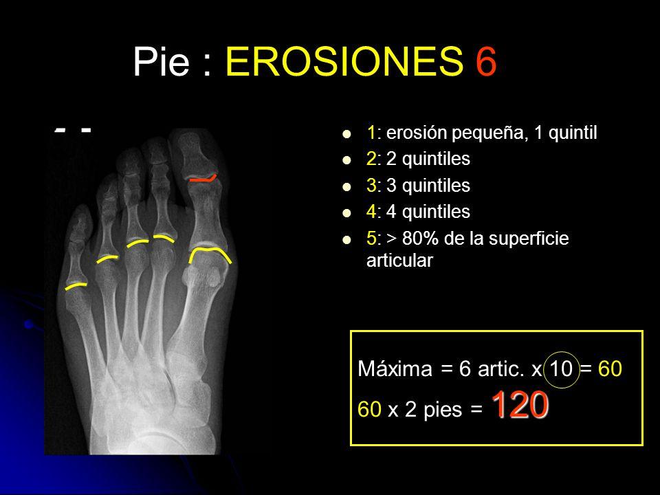 Pie : EROSIONES 6 1: erosión pequeña, 1 quintil 2: 2 quintiles 3: 3 quintiles 4: 4 quintiles 5: > 80% de la superficie articular Máxima = 6 artic. x 1