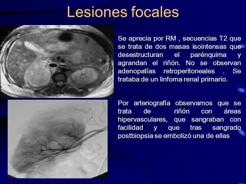 Se aprecia por RM, secuencias T2 que se trata de dos masas isointensas que desestructuran el parénquima y agrandan el riñón. No se observan adenopatía