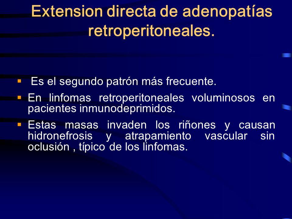 Extension directa de adenopatías retroperitoneales. Es el segundo patrón más frecuente. En linfomas retroperitoneales voluminosos en pacientes inmunod