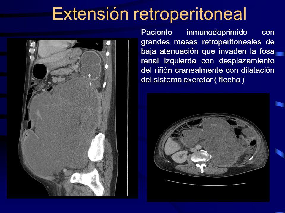 Paciente inmunodeprimido con grandes masas retroperitoneales de baja atenuación que invaden la fosa renal izquierda con desplazamiento del riñón crane