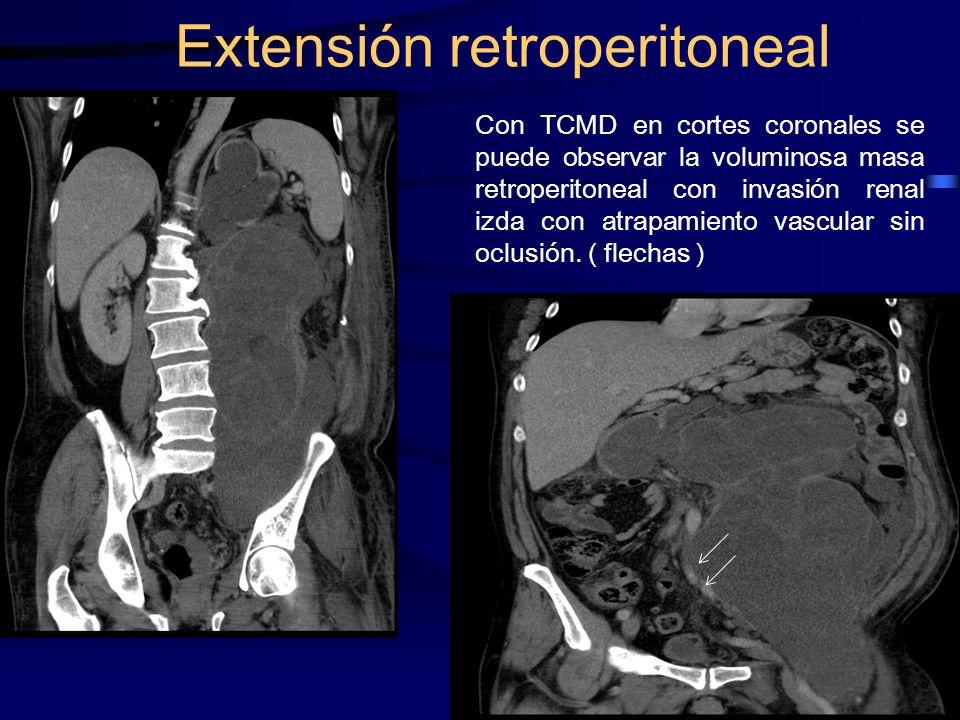 Con TCMD en cortes coronales se puede observar la voluminosa masa retroperitoneal con invasión renal izda con atrapamiento vascular sin oclusión. ( fl