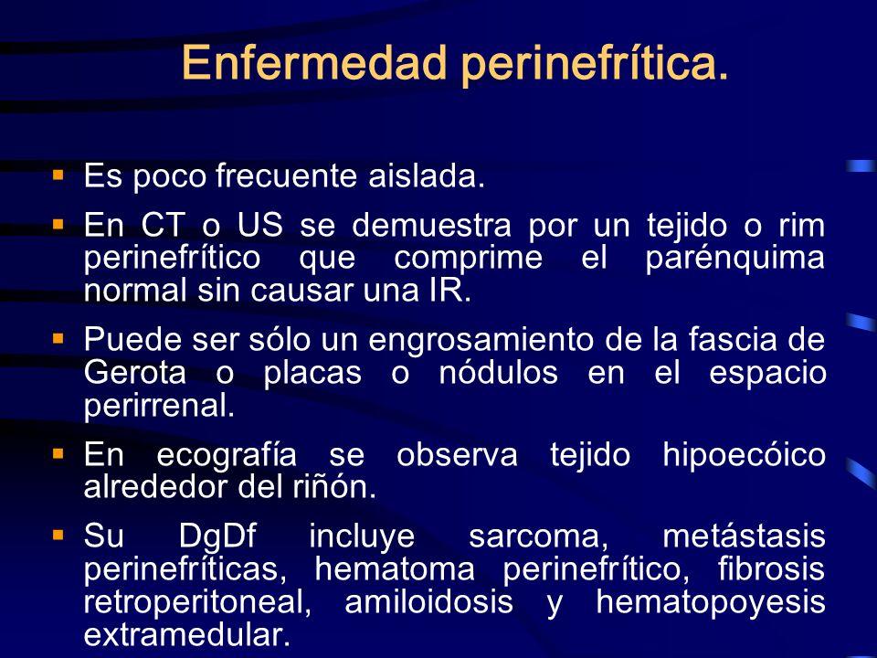 Enfermedad perinefrítica. Es poco frecuente aislada. En CT o US se demuestra por un tejido o rim perinefrítico que comprime el parénquima normal sin c