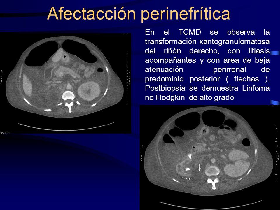 En el TCMD se observa la transformación xantogranulomatosa del riñón derecho, con litiasis acompañantes y con area de baja atenuación perirrenal de pr