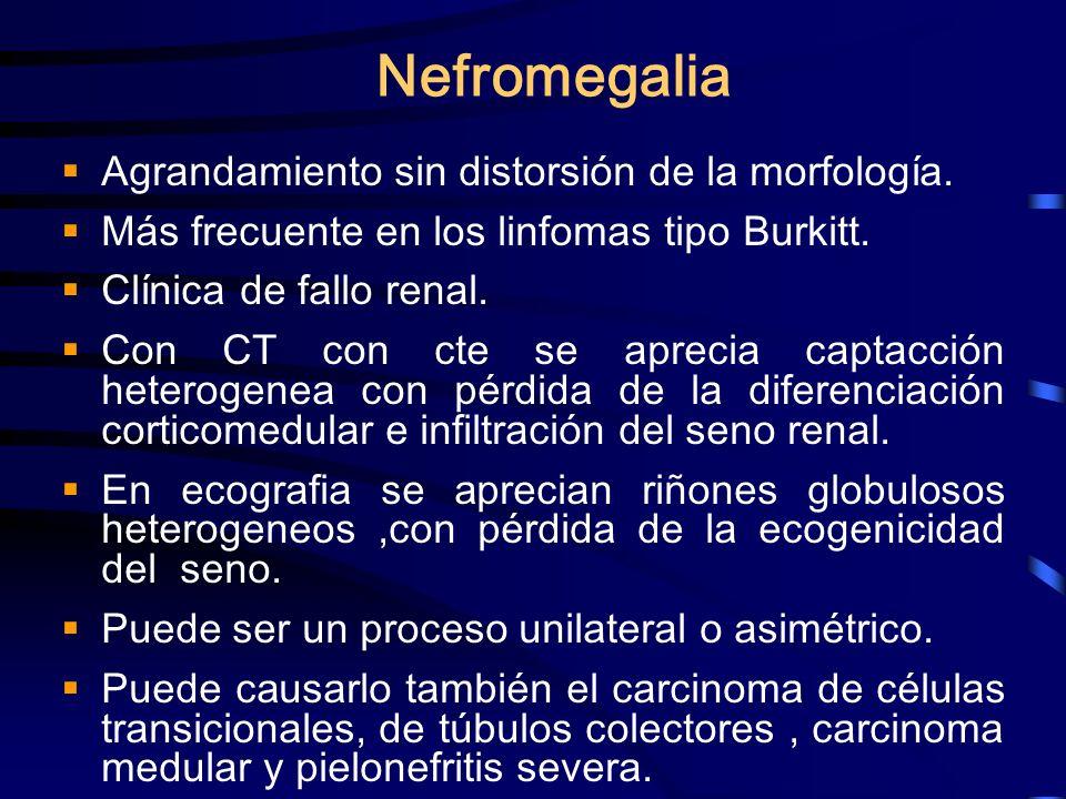 Nefromegalia Agrandamiento sin distorsión de la morfología. Más frecuente en los linfomas tipo Burkitt. Clínica de fallo renal. Con CT con cte se apre