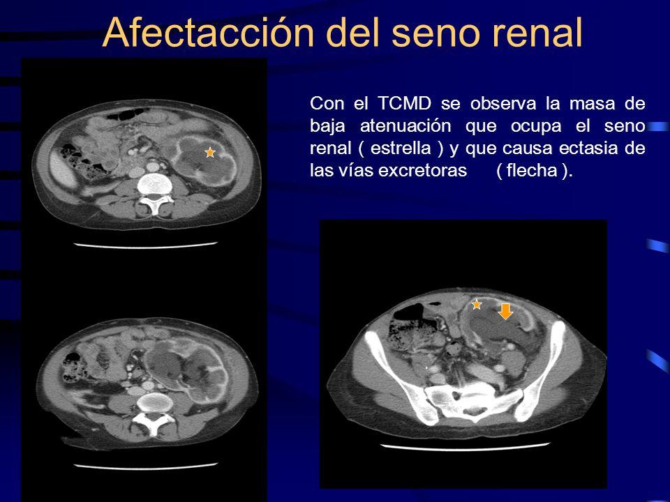 Con el TCMD se observa la masa de baja atenuación que ocupa el seno renal ( estrella ) y que causa ectasia de las vías excretoras ( flecha ). Afectacc