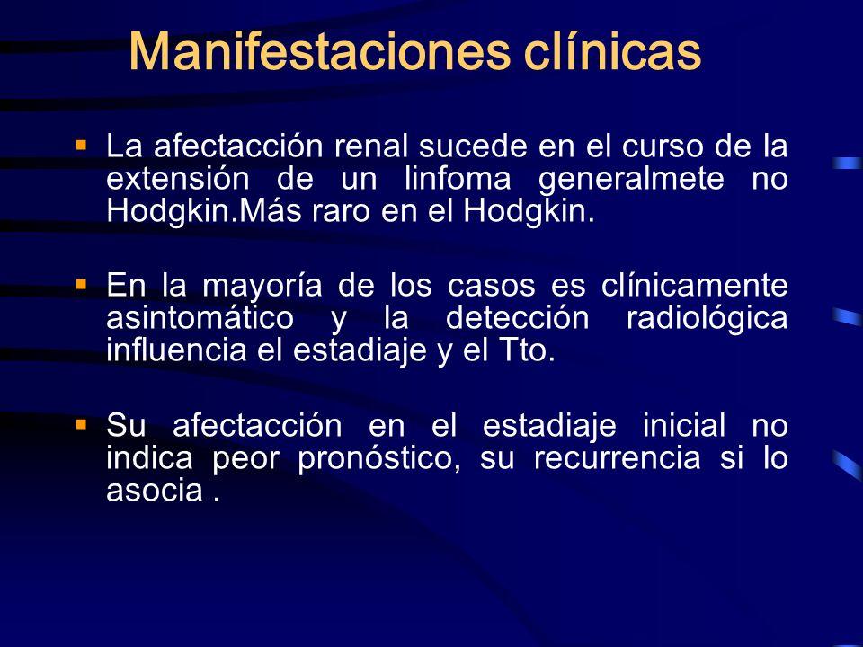 Manifestaciones clínicas La afectacción renal sucede en el curso de la extensión de un linfoma generalmete no Hodgkin.Más raro en el Hodgkin. En la ma