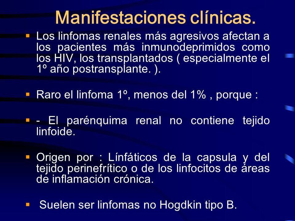 Manifestaciones clínicas. Los linfomas renales más agresivos afectan a los pacientes más inmunodeprimidos como los HIV, los transplantados ( especialm