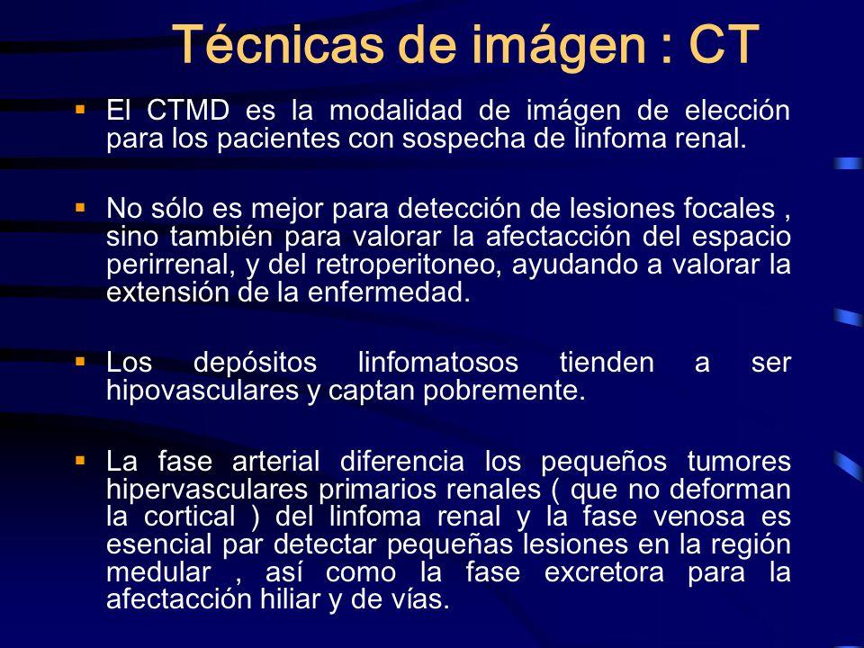 Técnicas de imágen : CT El CTMD es la modalidad de imágen de elección para los pacientes con sospecha de linfoma renal. No sólo es mejor para detecció