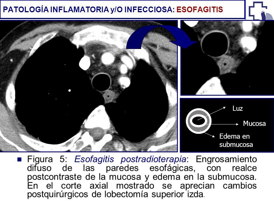 Figura 5: Esofagitis postradioterapia: Engrosamiento difuso de las paredes esofágicas, con realce postcontraste de la mucosa y edema en la submucosa.