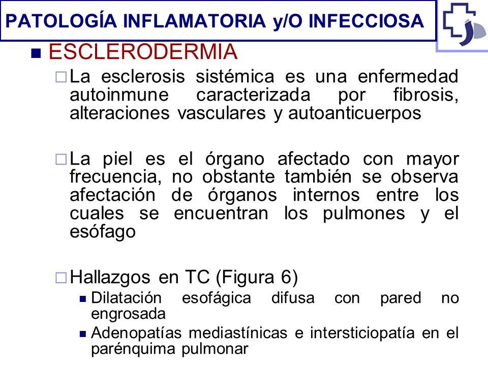 ESCLERODERMIA La esclerosis sistémica es una enfermedad autoinmune caracterizada por fibrosis, alteraciones vasculares y autoanticuerpos La piel es el