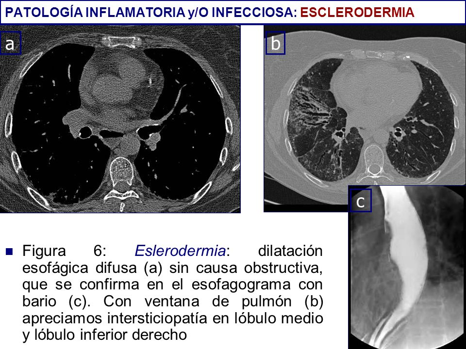Figura 6: Eslerodermia: dilatación esofágica difusa (a) sin causa obstructiva, que se confirma en el esofagograma con bario (c). Con ventana de pulmón