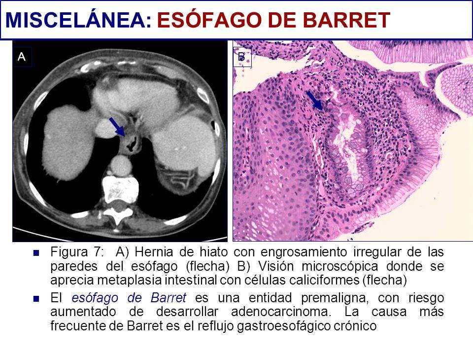 Figura 7: A) Hernia de hiato con engrosamiento irregular de las paredes del esófago (flecha) B) Visión microscópica donde se aprecia metaplasia intest